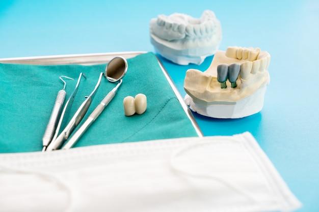 Modelo de implante suporte de dente fixa ponte implante e coroa.