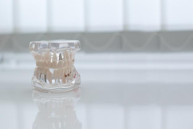 Modelo de mandíbula artificial em cima da mesa no consultório odontológico