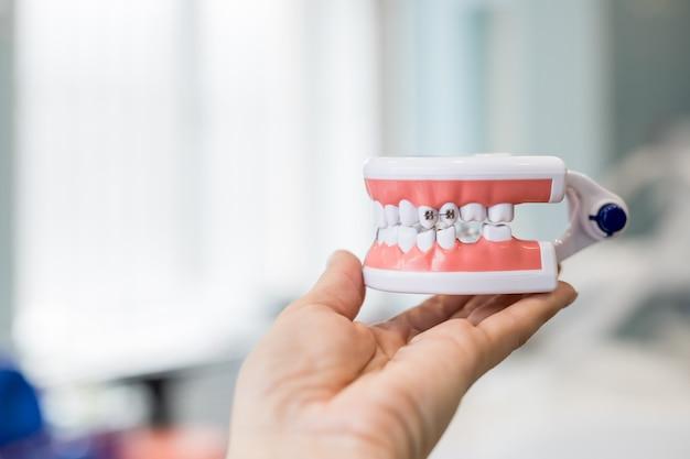 Modelo de mandíbula de dentes na mão do médico.