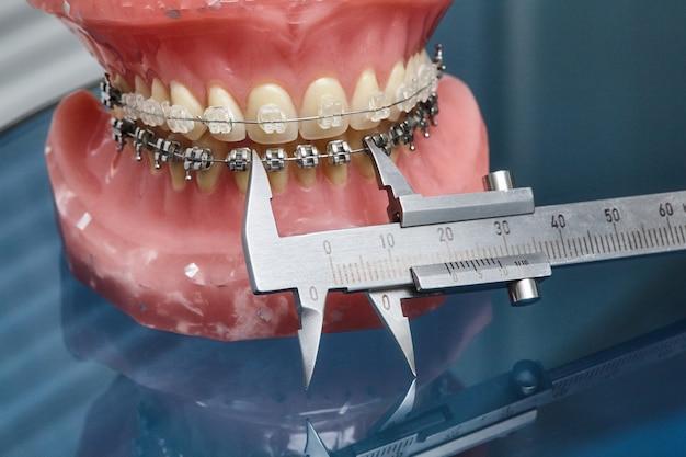 Modelo de mandíbula ou dentes humanos com aparelho dentário de metal e compasso de calibre vernier