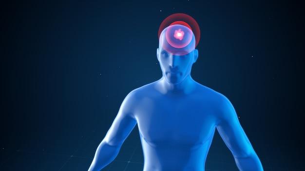 Modelo de um homem com impulsos de dor de cabeça