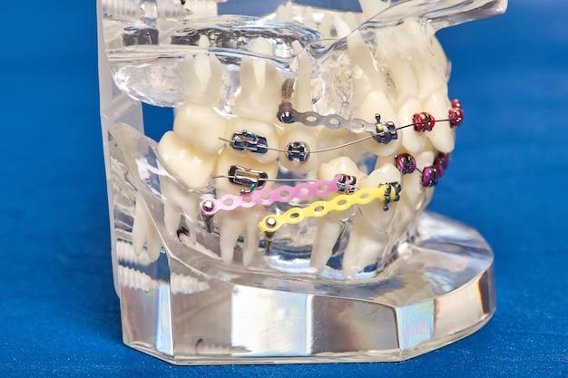 Modelo dental ortodôntico de dentes humanos com implantes, aparelho dentário