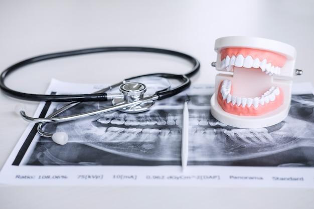 Modelo e equipamento dental no filme de raio x do dente e no estetoscópio usados no tratamento