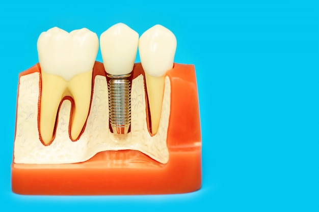 Modelo médico da mandíbula com dentes falsos em um pino no fundo azul