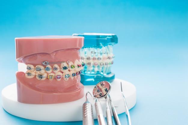 Modelo ortodôntico e dentista