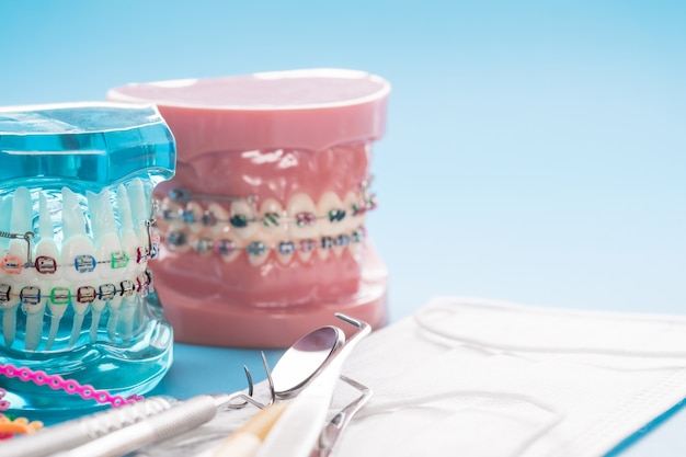 Modelo ortodôntico e ferramenta do dentista - modelo de demonstração de vários tipos de braquete ou aparelho ortodôntico