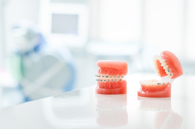 Modelo ortodôntico e ferramenta do dentista - modelo de demonstração dos dentes das variedades do braquete ou braçadeira ortodôntica.