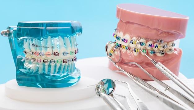 Modelo ortodôntico e ferramenta do dentista - modelo de demonstração dos dentes de várias variedades de braquete ou aparelho ortodôntico