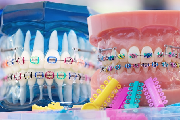 Modelo ortodôntico e ferramenta do dentista - modelo de demonstração dos dentes de variedades de braquete ou aparelho ortodôntico