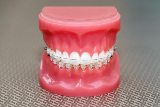 Modelo ortodôntico e ferramenta do dentista - modelo de dentes de demonstração com aparelho de cerâmica nos dentes em um close de mandíbulas artificiais