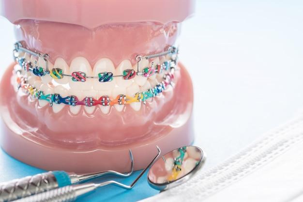 Modelo ortodôntico e ferramenta do dentista - modelo de dentes de demonstração de variedades de bráquete ortodôntico