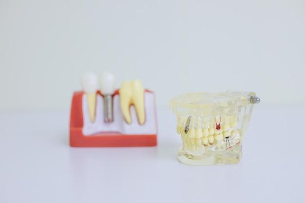 Modelo ortodôntico e ferramenta do dentista - modelo de dentes de demonstração de variedades de bráquetes ou bráquetes ortodônticos.