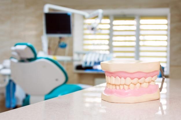 Modelos de maxila humana em um consultório de dentista, cuidados com os dentes e conceito de próteses.