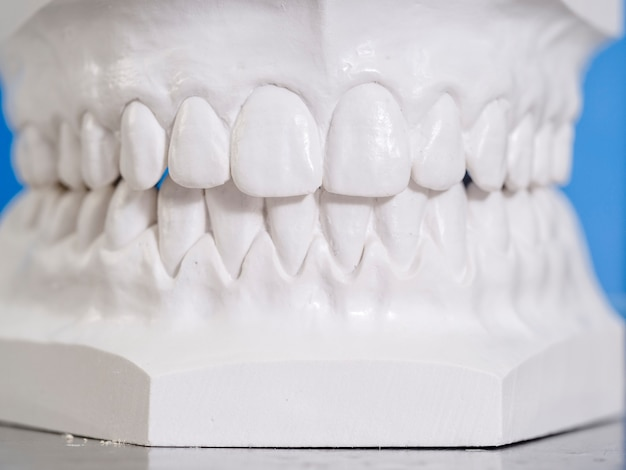 Molde branco dental de gesso