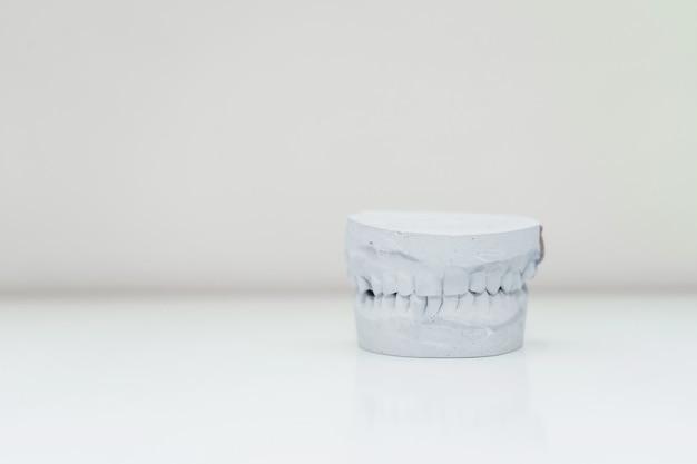 Molde de gesso da mandíbula em uma mesa em uma sala iluminada