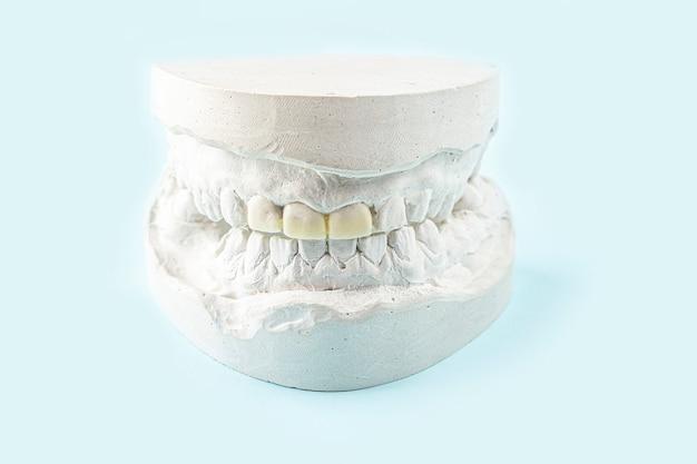 Molde de gesso estomatológico, moldes de mandíbulas e dentes humanos em azul