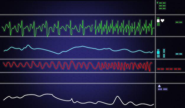 Monitor de paciente mostrando sinais vitais ecg e ekg. ilustração vetorial.