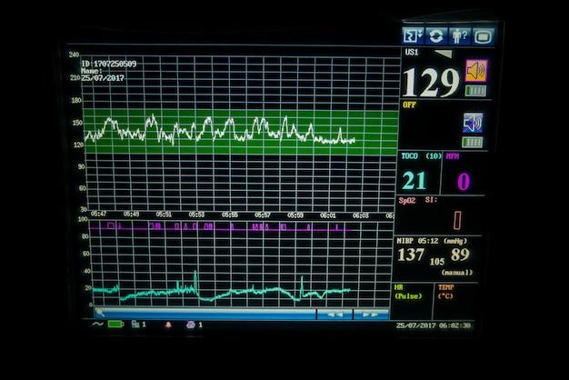 Monitor de sinais vitais