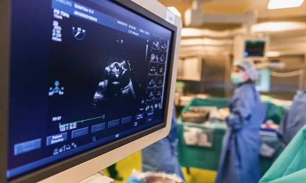 Monitoramento ultrassonográfico do coração durante a cirurgia na sala de cirurgia