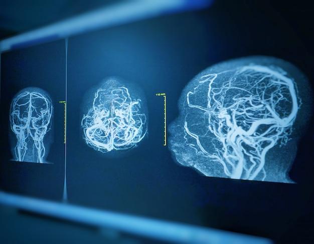 Mra e mrv do cérebro história: mulher de 61 anos, com hemorragia intracraniana.