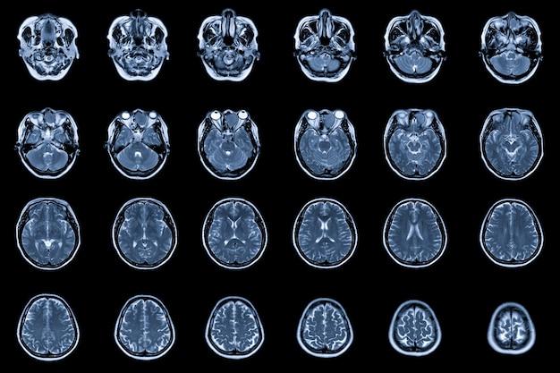 Mri brain and orbit mostrando ocupação no etmóide anterior esquerdo e seios frontais esquerdos