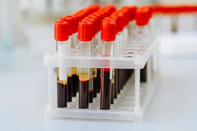 Muitos tubos de ensaio com sangue sendo testado. equipamento médico.