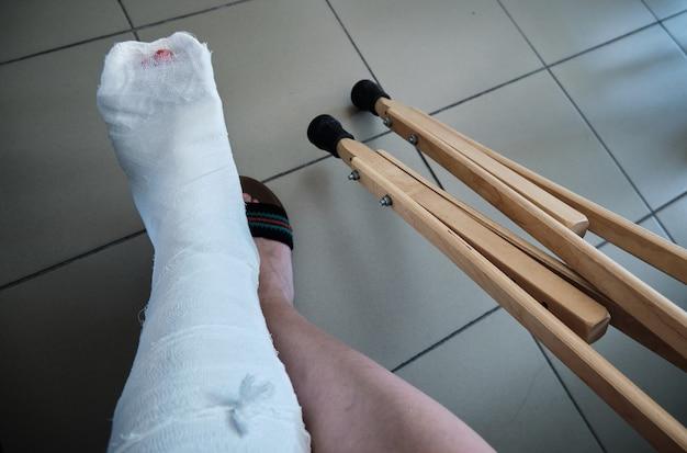 Muletas ortopédicas close up de bondage em uma perna com gesso lesão na perna reabilitação após uma fratura