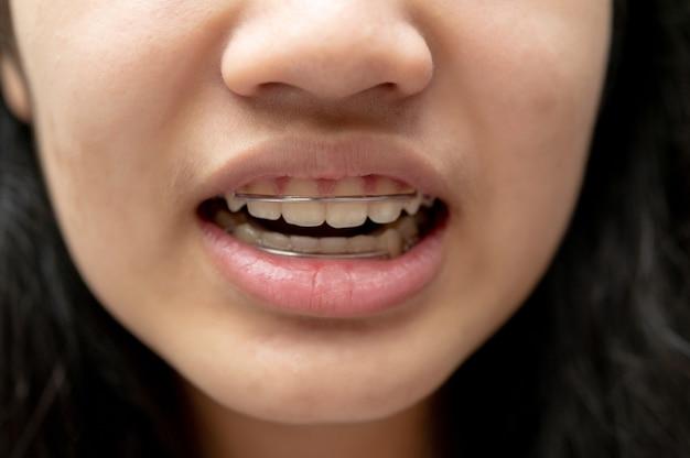 Mulher adolescente asiática usando retentores ortodônticos