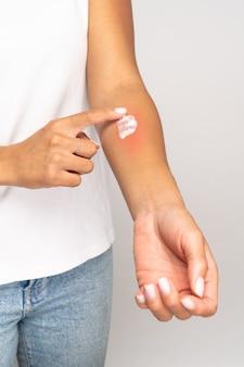 Mulher aplicando creme na pele inchada após picadas de inseto isoladas em fundo cinza do estúdio.