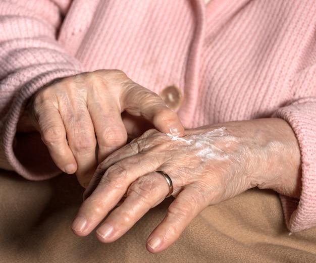 Mulher aplicando creme para as mãos em casa. close das mãos enrugadas de uma mulher