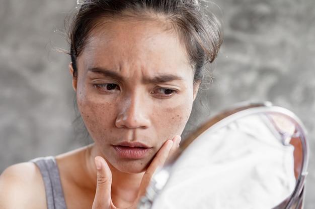 Mulher asiática, com manchas escuras na pele, sardas da luz uv