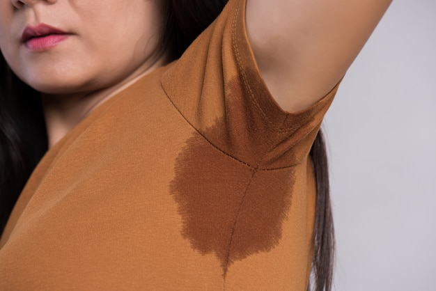 Mulher asiática de close-up com transpiração hiperidrose.