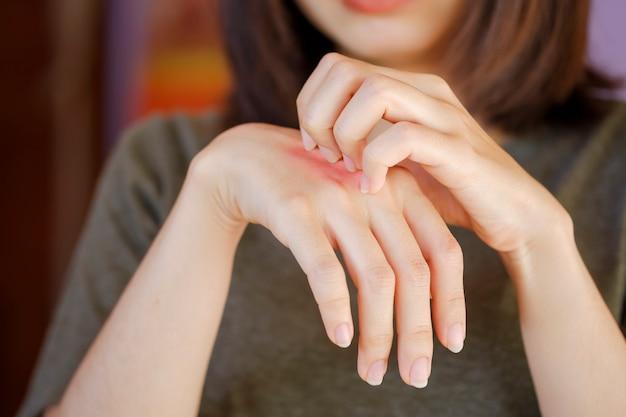 Mulher asiática está coçando a mão com uma erupção cutânea vermelha nas costas da mão devido a uma alergia a corpo estranho ou picada de inseto.