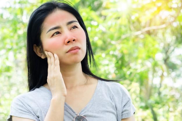 Mulher asiática tendo problemas de pele no rosto com vermelhidão de queimadura de sol por causa da luz ultravioleta do sol