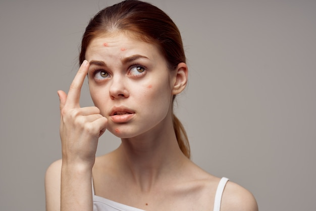 Mulher bonita com espinhas no fundo de higiene facial isolado