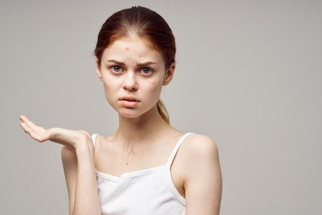 Mulher bonita com espinhas no rosto, higiene facial, luz de fundo