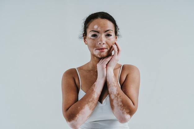 Mulher bonita com pele vitiligo, posando no estúdio. conceito sobre positividade corporal e autoaceitação