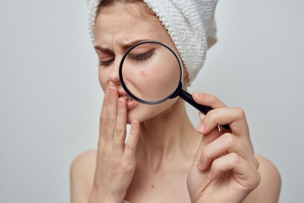 Mulher bonita com uma espinha no rosto, problemas de pele, close-up