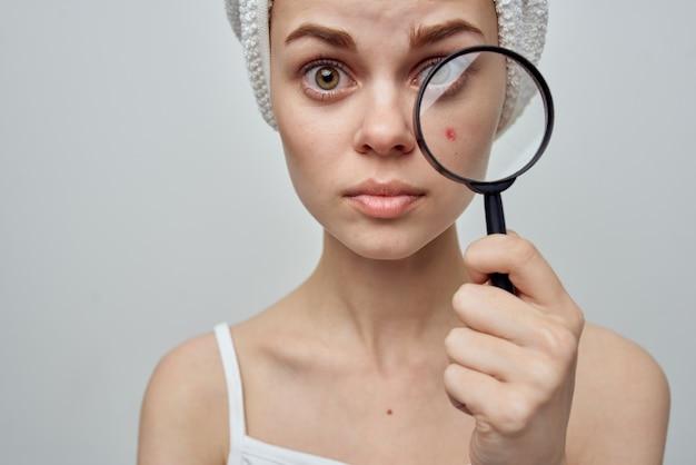 Mulher bonita com uma toalha na cabeça, segurando uma lupa nas mãos, acne no rosto