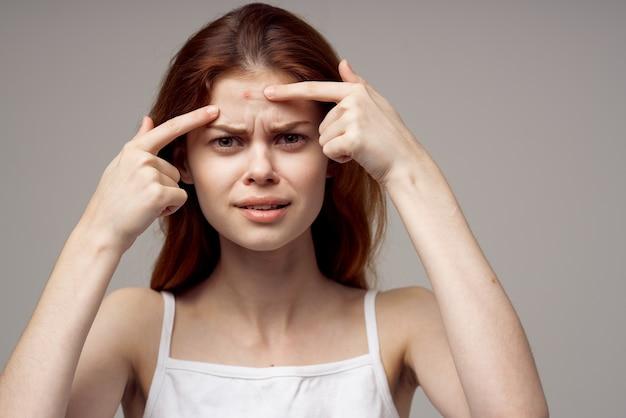 Mulher bonita em uma camiseta branca espinhas no rosto isolado fundo