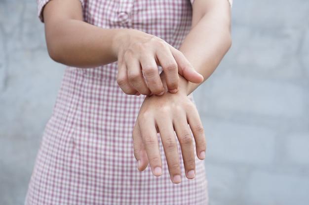 Mulher coçando o braço de coceira