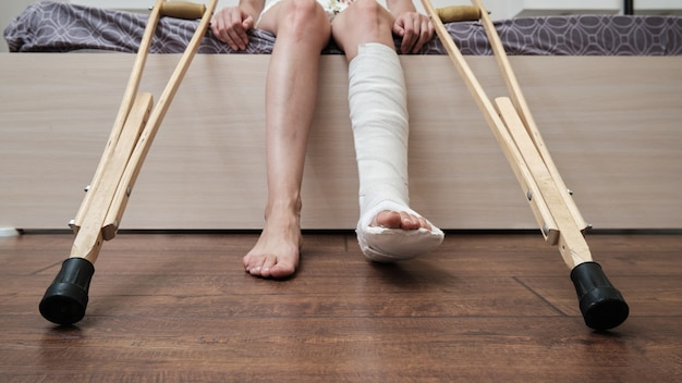 Mulher com a perna quebrada, sentada na cama e segurando muletas. foto de alta qualidade