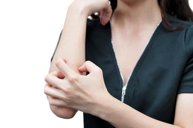 Mulher com coceira na pele coçar o braço