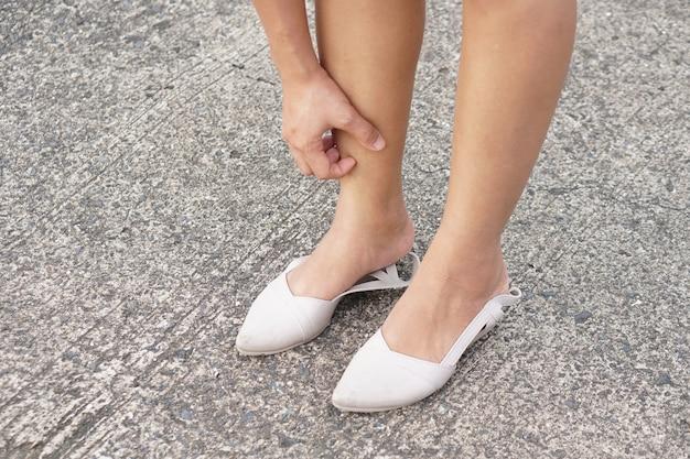 Mulher com coceira na pele da perna