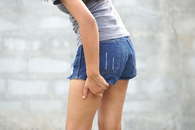 Mulher com coceira na pele na perna