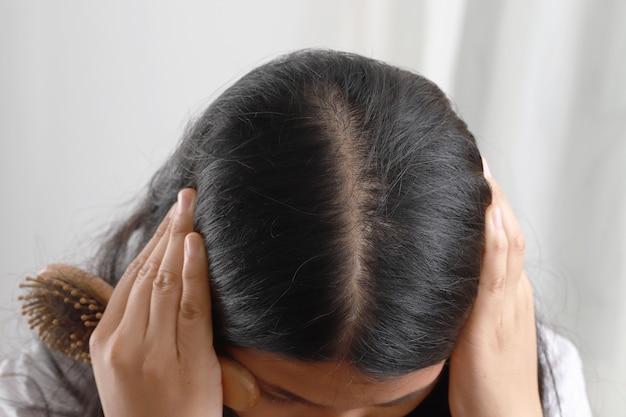 Mulher com couro cabeludo magro e muita queda de cabelo
