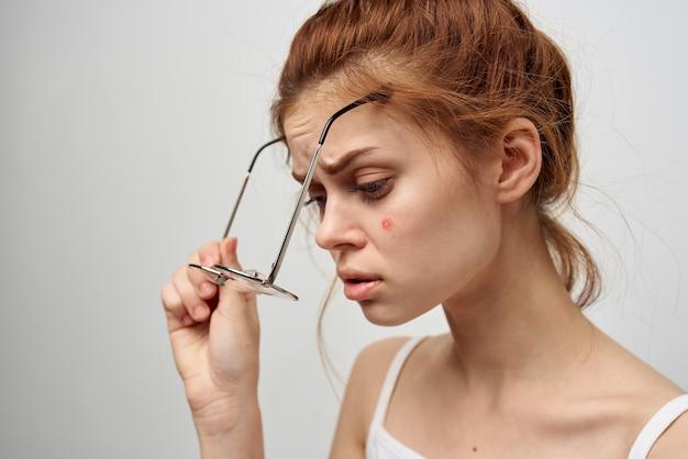 Mulher com espinha no rosto tratamento de higiene