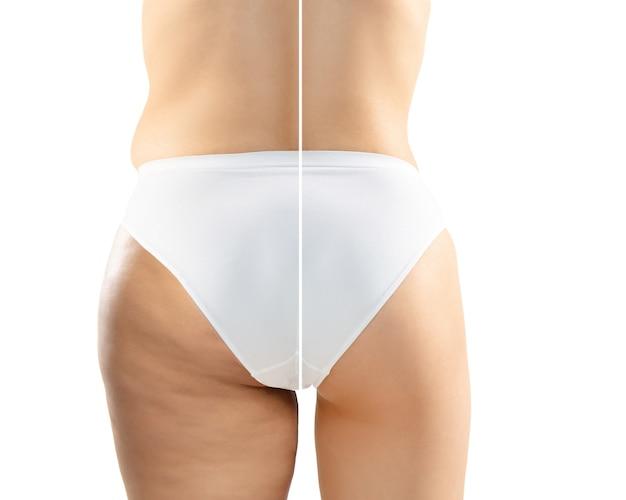 Mulher com excesso de peso com celulite nas pernas e nádegas em cueca branca comparando com o corpo magro e em forma no fundo branco. pele casca de laranja, lipoaspiração, saúde, beleza, esporte, cirurgia. folheto