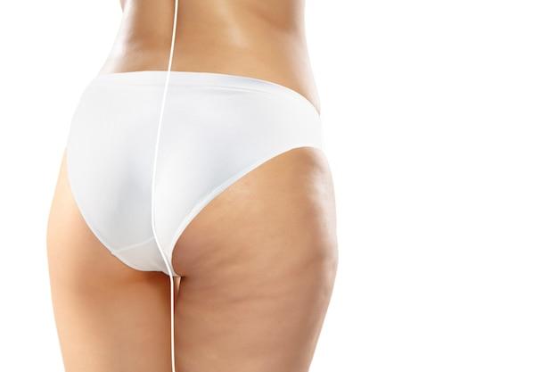 Mulher com excesso de peso com celulite nas pernas e nádegas na cueca branca comparando com o corpo magro e em forma isolada no fundo branco. pele casca de laranja, lipoaspiração, saúde, beleza, esporte, cirurgia.