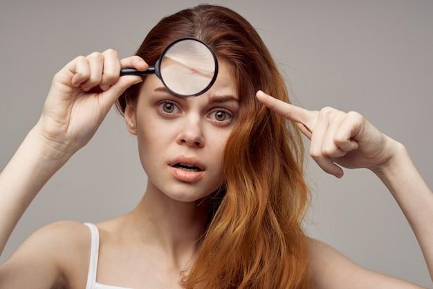 Mulher com lupa perto da janela com espinhas no rosto, problemas de saúde